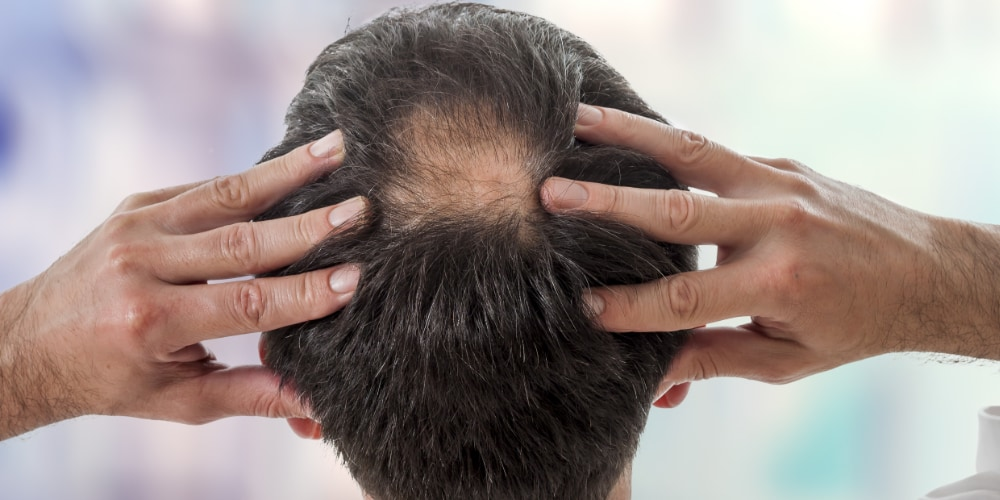 Can Scalp Massage Really Stop Hair Loss? - The Massage Rooms